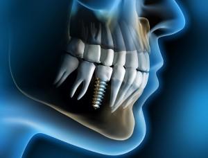 implants4 (Medium)